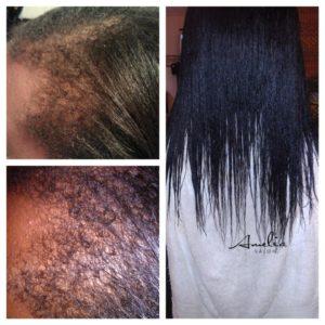 AmeliaSalon.com-Postpartum-Alopecia