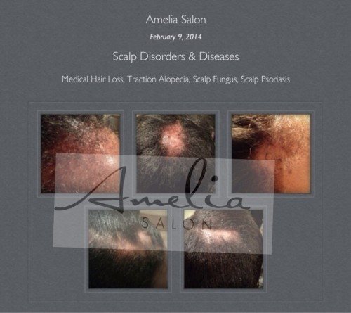Scalp Disorders and Diseases